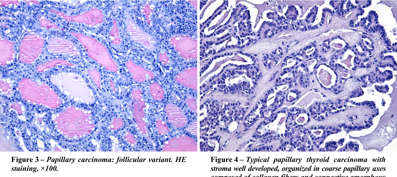 papillary thyroid cancer images