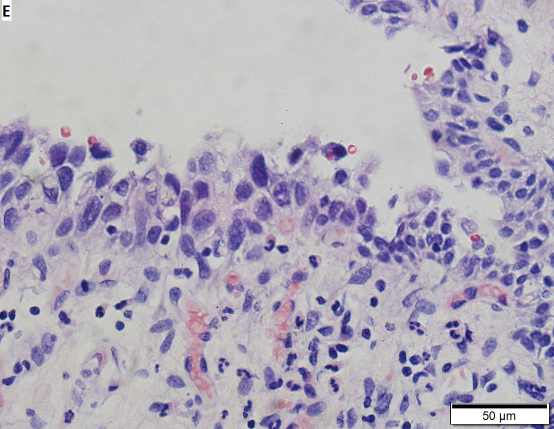 papillary urothelial carcinoma in situ)