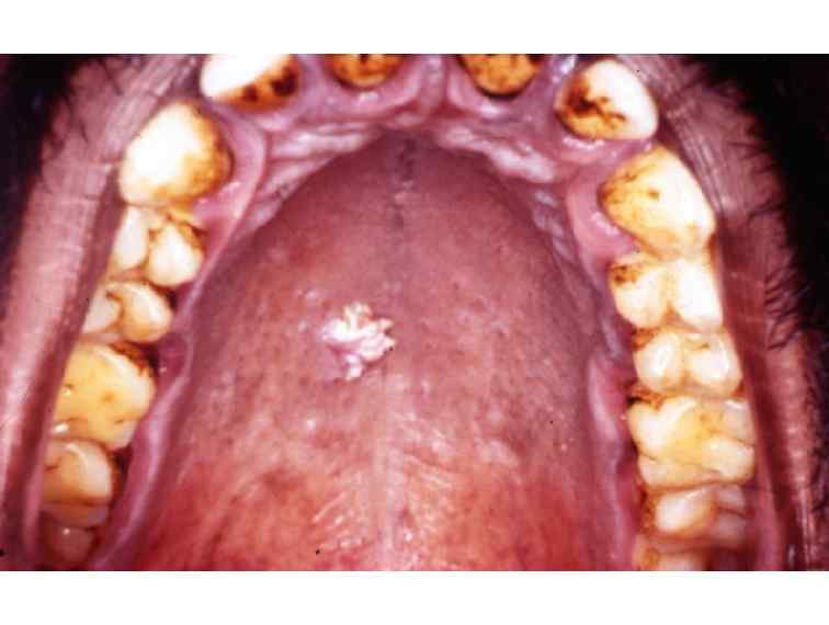 papilloma dental definition papillary thyroid cancer recurrence symptoms