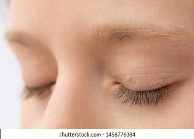 papilloma eye infection