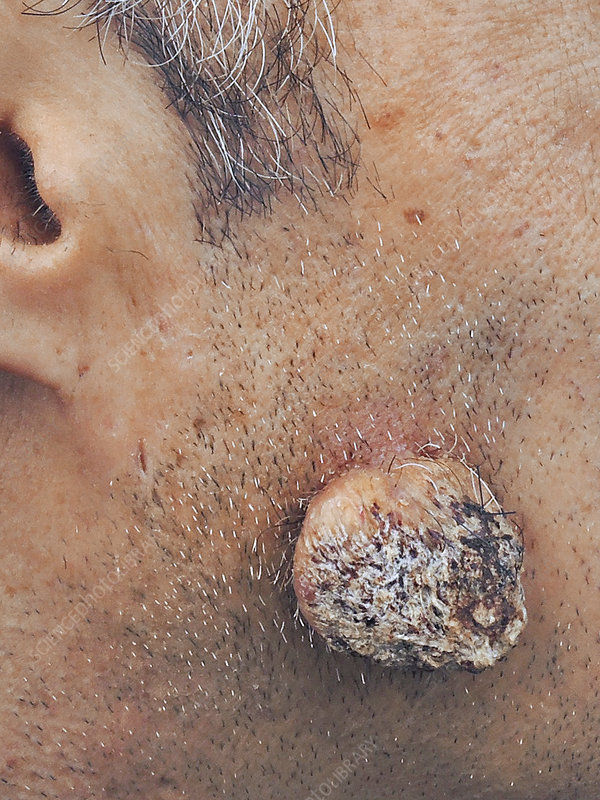 papilloma in ear