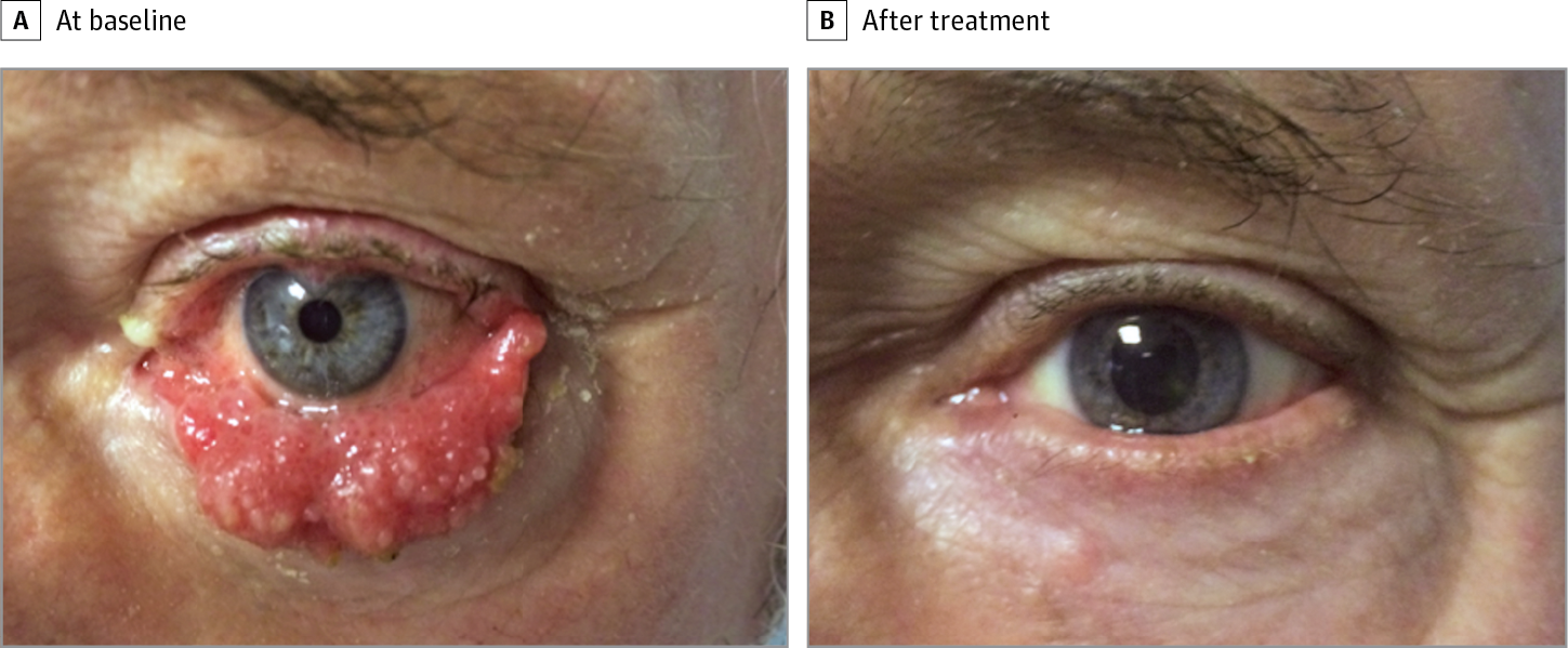 papilloma in eye treatment)