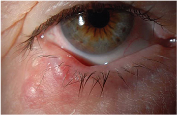 papilloma of the eye