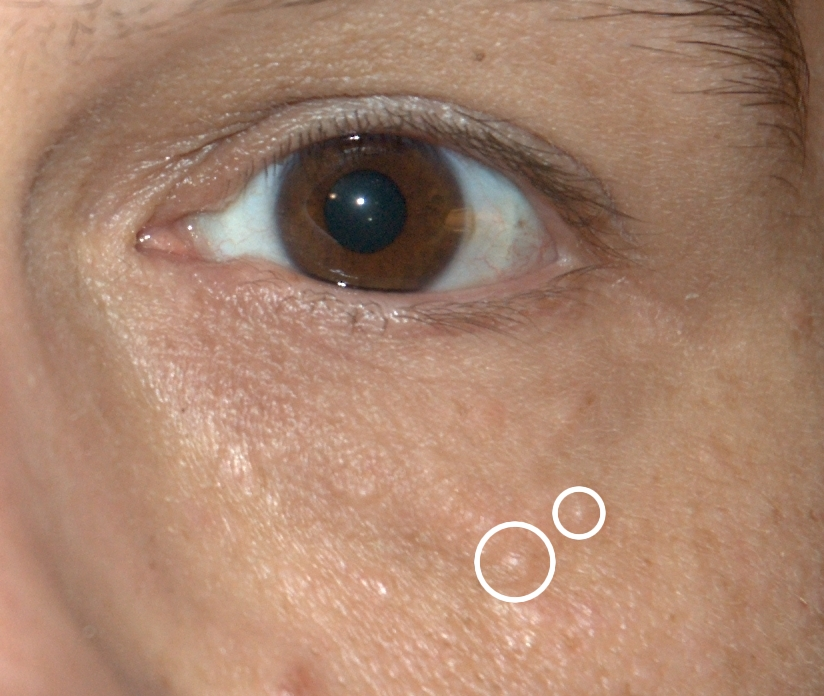 papilloma on eyelid nhs
