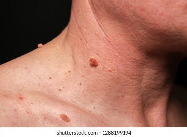 papilloma on the neck)