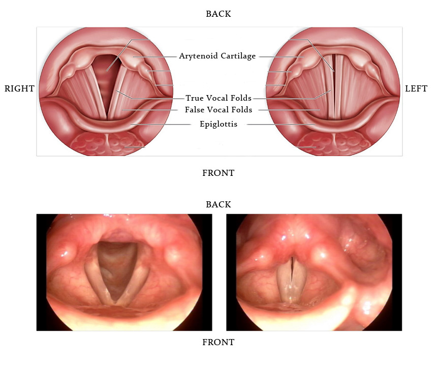 papilloma on vocal folds