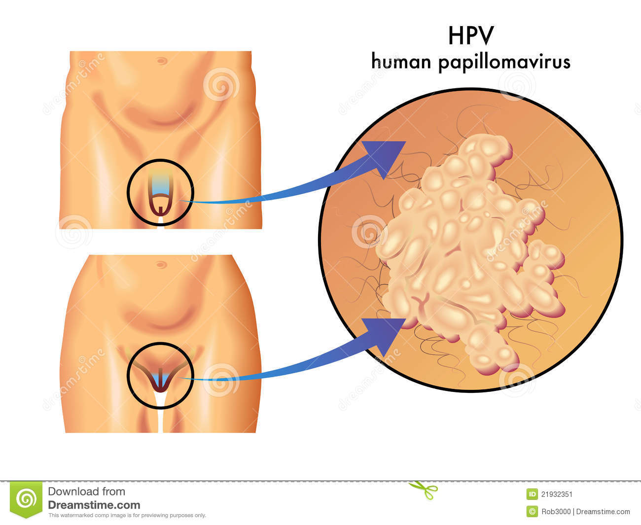 papilloma virus humans)