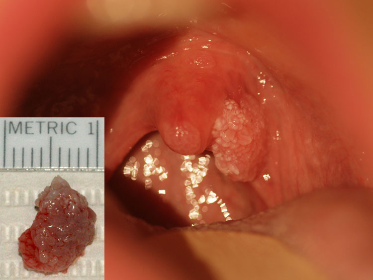 papiloma uvula cancer)