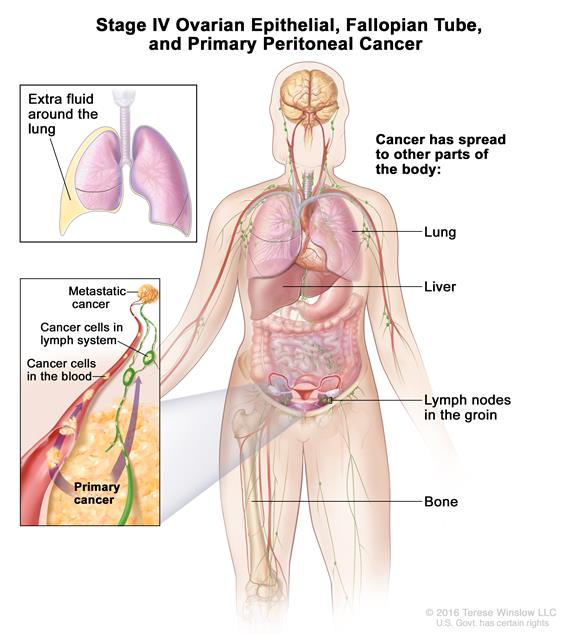 peritoneal cancer definition cancer fundus gastric