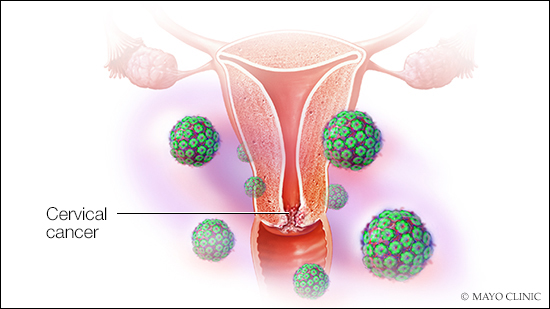 precancerous cells from hpv)