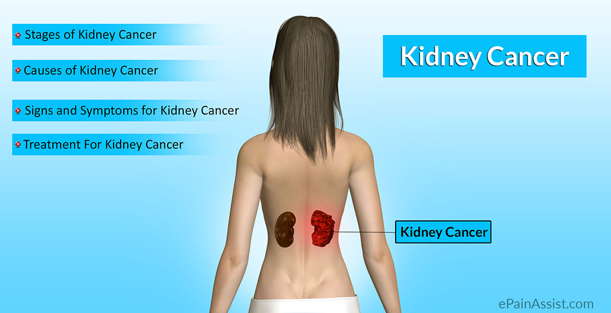 renal cancer causes)