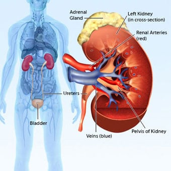 renal cancer hereditary)