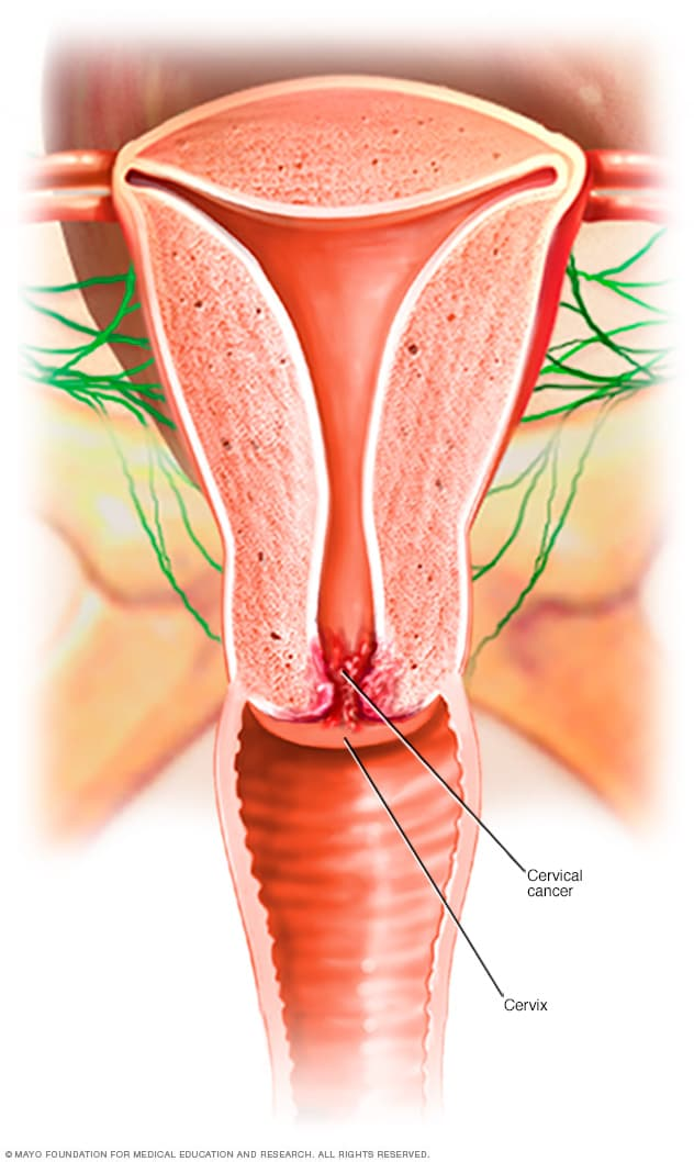signs of hpv cervical cancer)