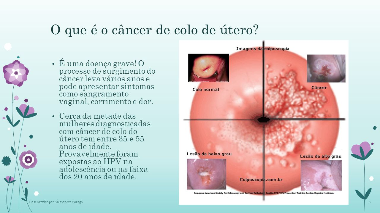 sintomas de cancer no utero hpv
