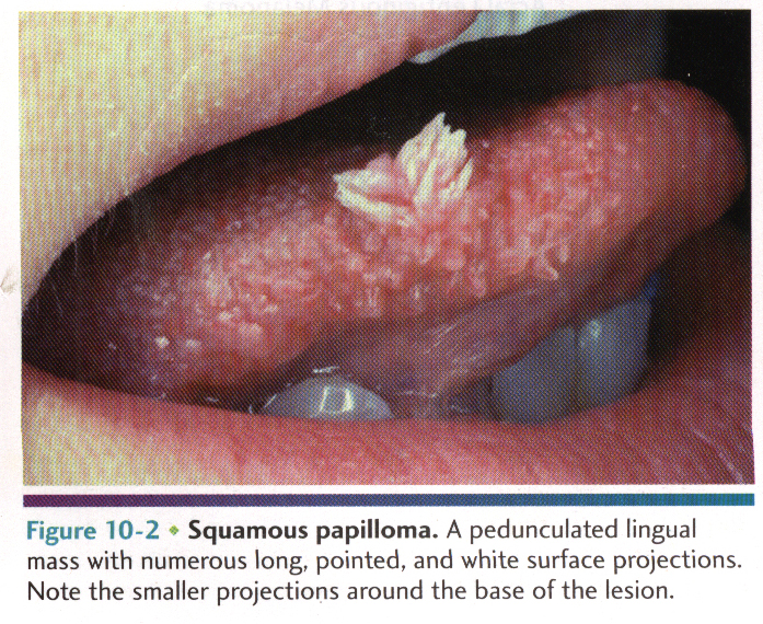 squamous cell papilloma and verruca vulgaris