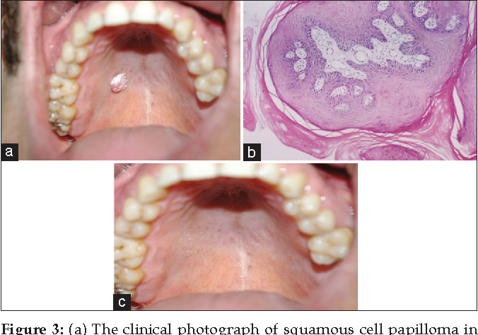 squamous cell papilloma palate