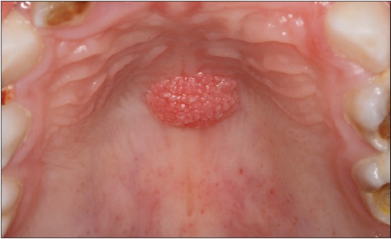 squamous papilloma articles)