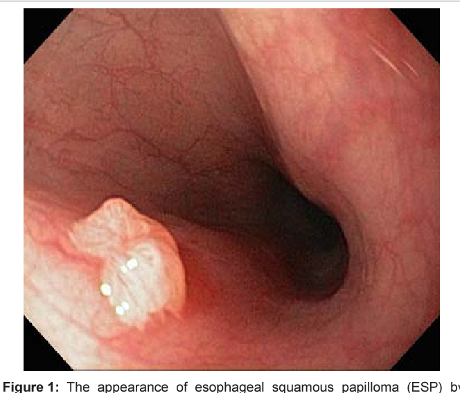 squamous papilloma of esophagus)
