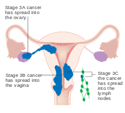 uterine cancer endometriosis hpv nutrition therapy