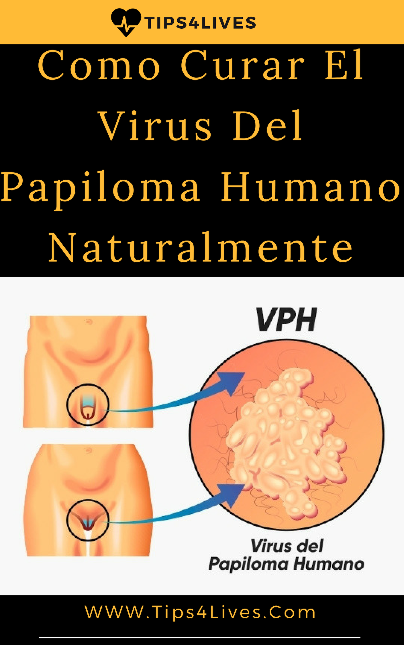 virus papiloma humano imagenes mujeres enterobius vermicularis in hindi