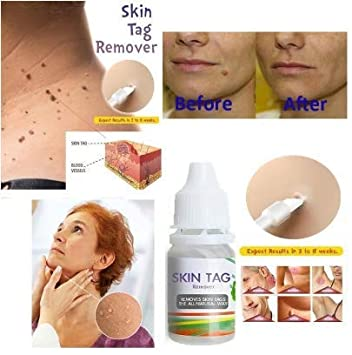 wart cream on skin tags
