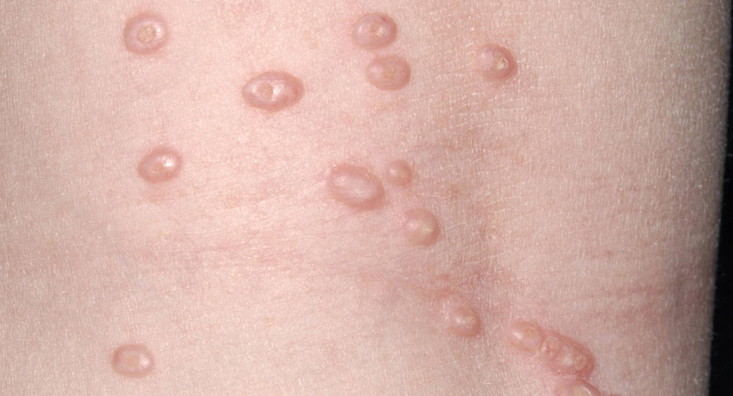 wart like virus on body