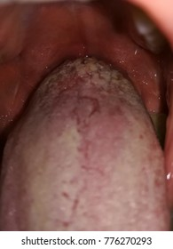 wart tongue white