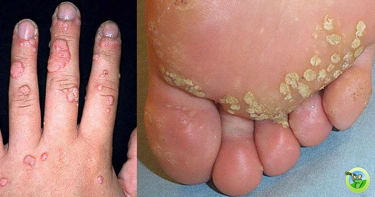 wart virus on toe)