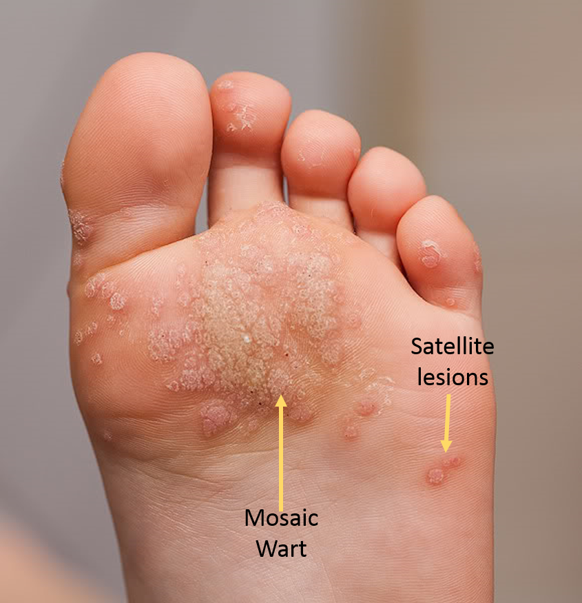 wart with foot)
