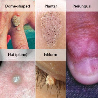 warts cancer treatment)
