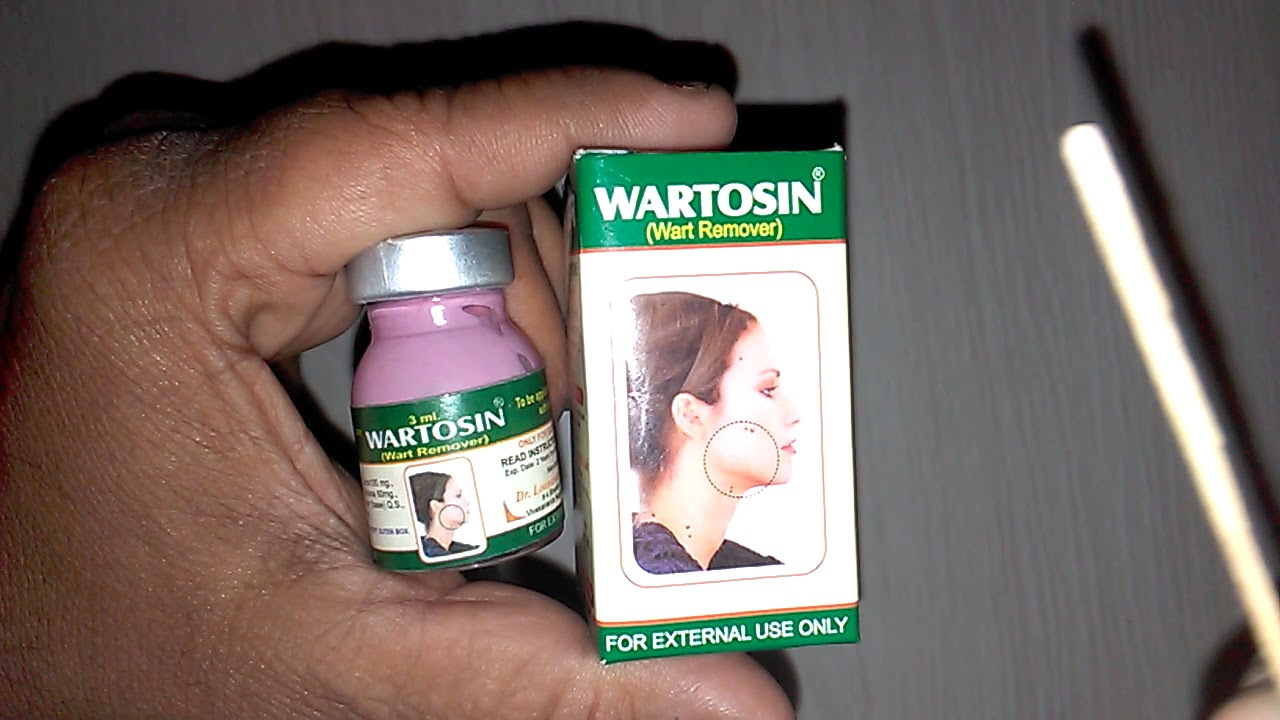 warts unani treatment