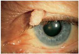 what causes eyelid papilloma