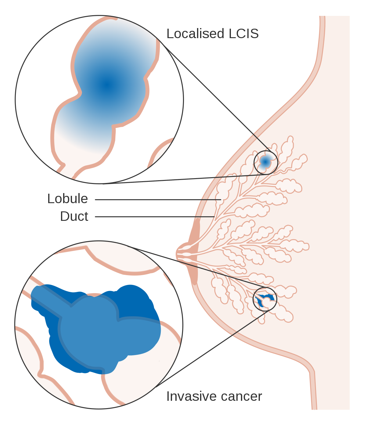 papilloma of left breast icd 10)