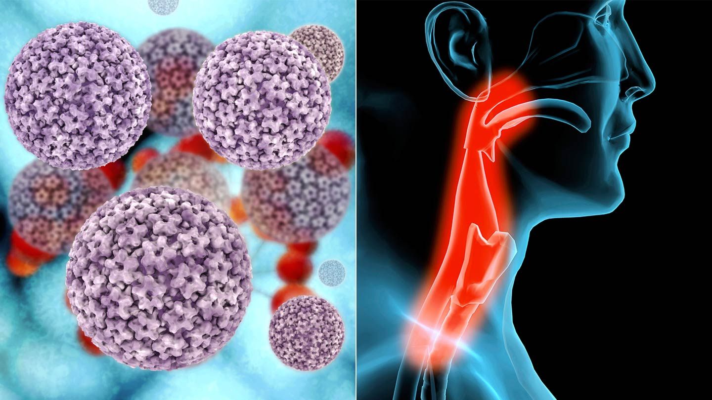 hpv virus turns into cancer)