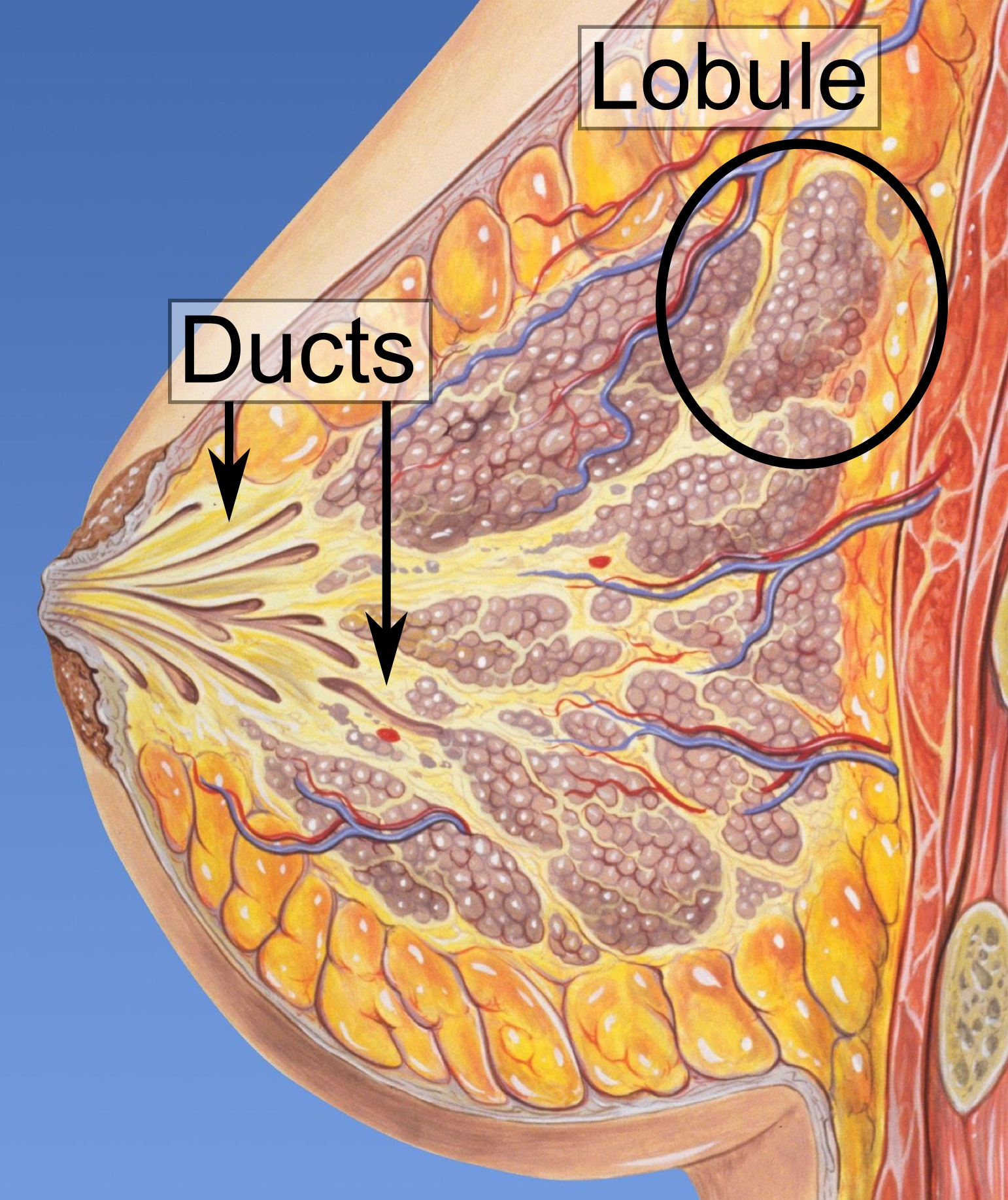 surgery remove breast duct papilloma