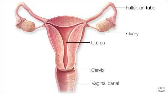 ovarian cancer how to prevent)