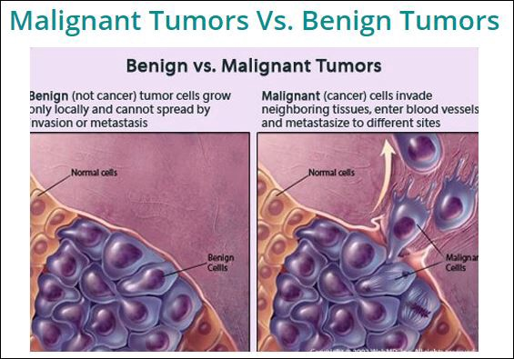 cancer benign cells)