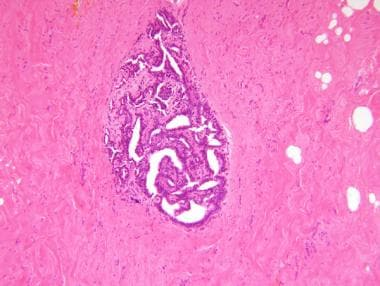 ductal papilloma incidence)