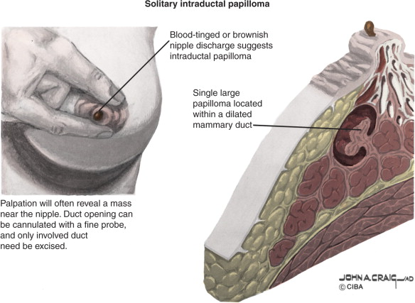 are breast papillomas cancerous