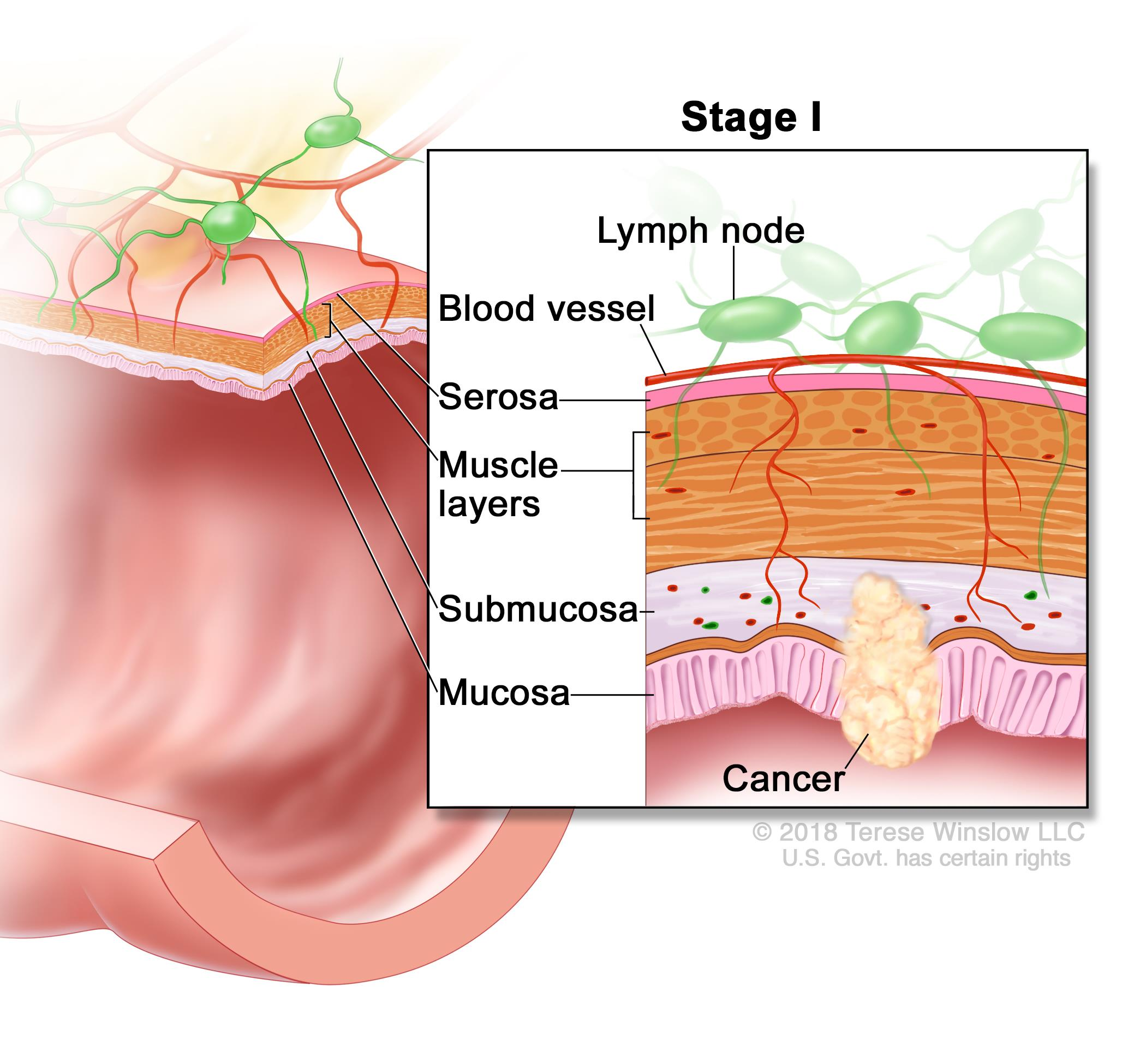 rectal cancer how fast does it grow bacterie xylella