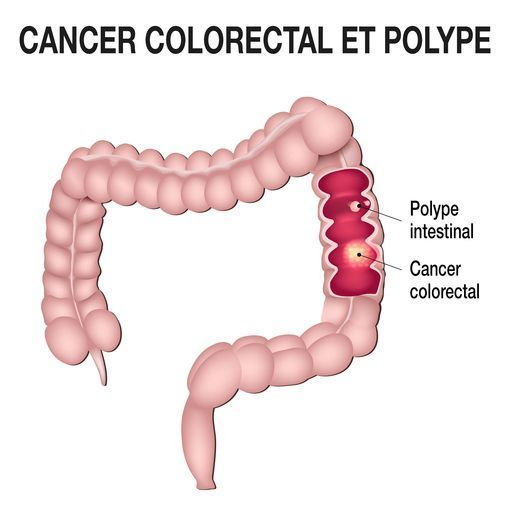 cancer colorectal douleur dos)