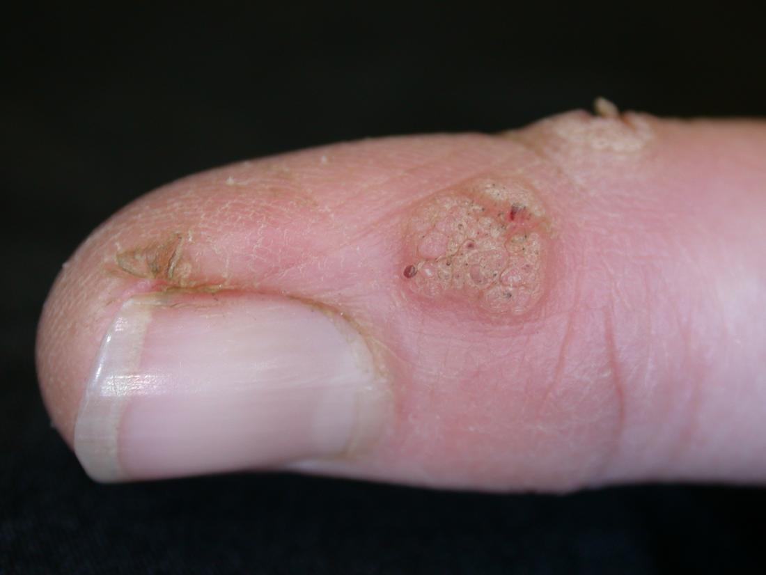 wart treatment stages)