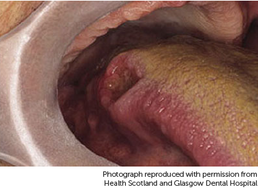 hpv related tongue cancer)