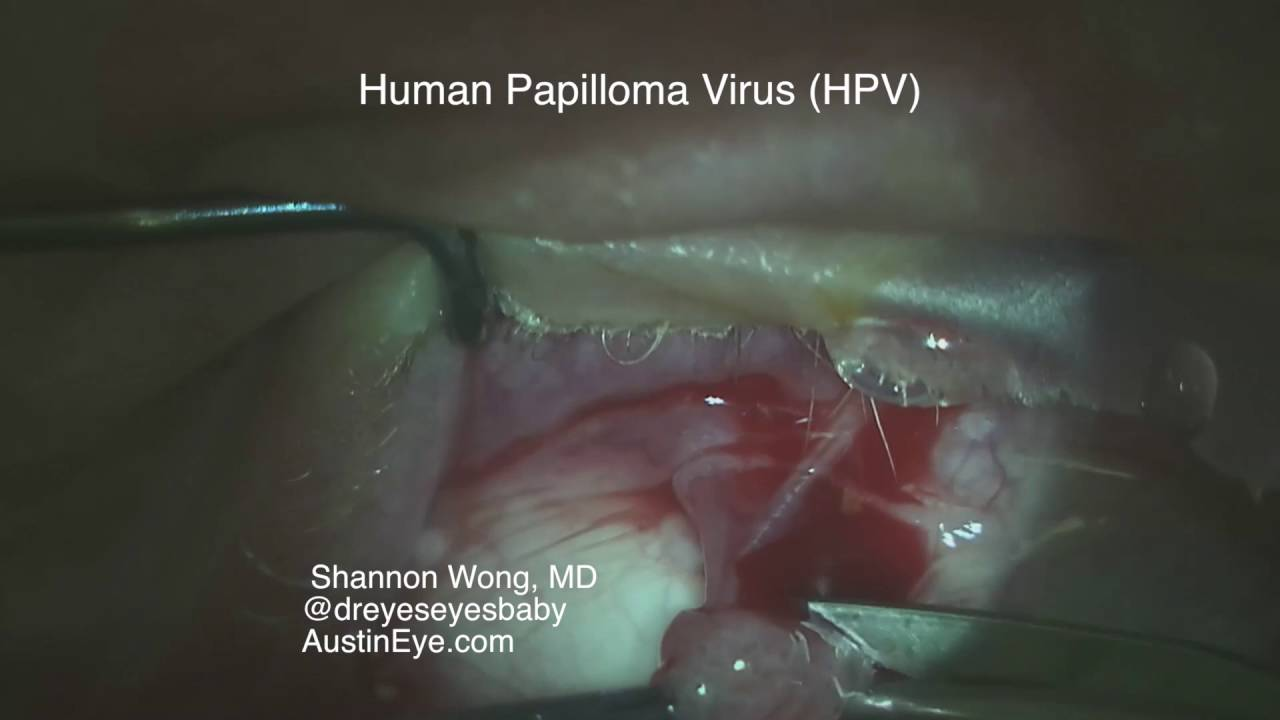 papilloma excision)