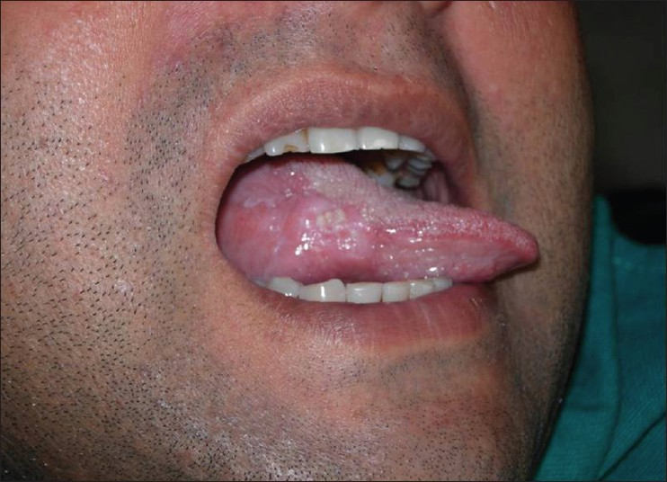 hpv squamous cell carcinoma tongue)