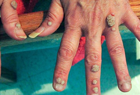 are warts on hands bad)