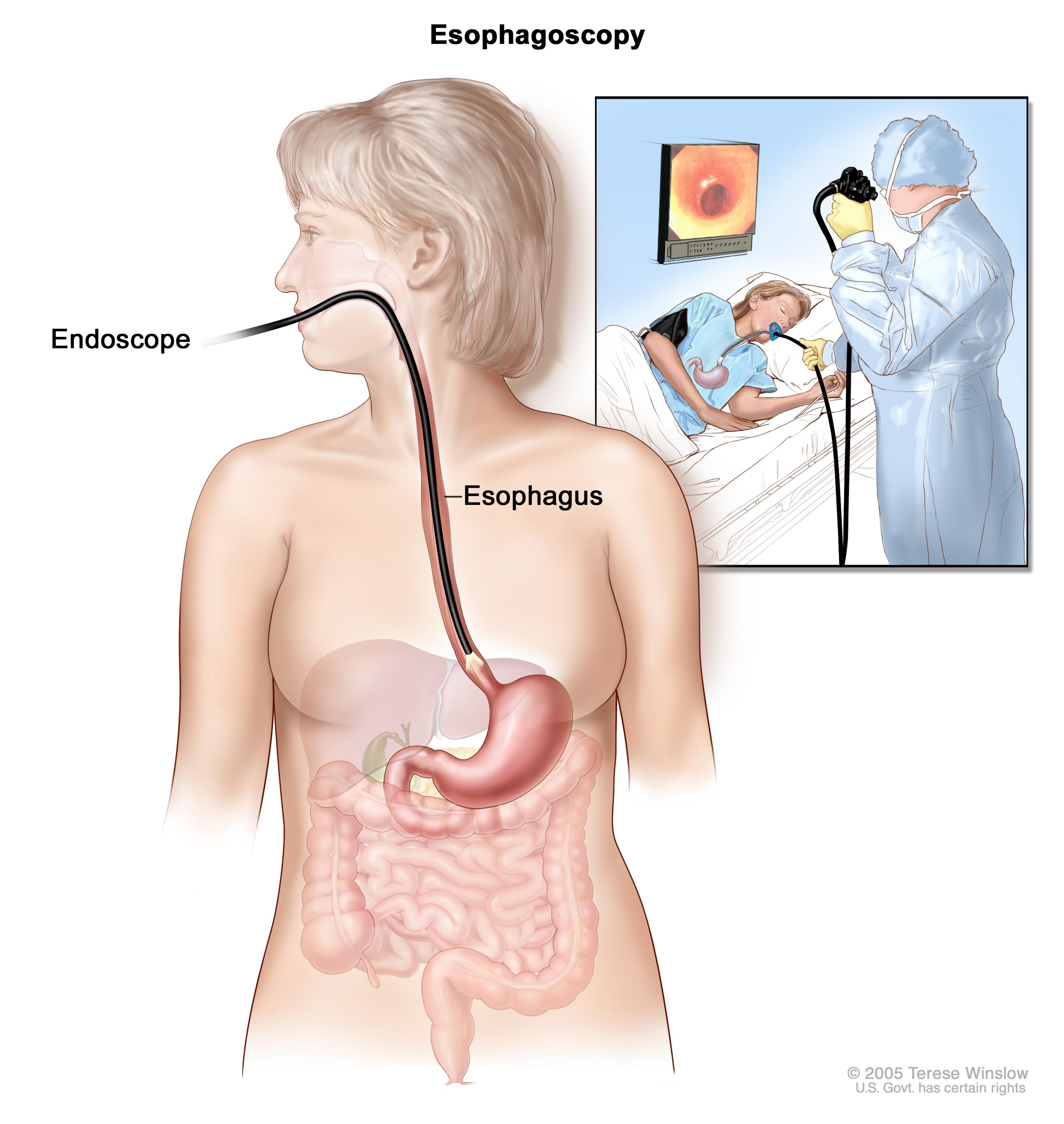 esophageal cancer caused by hpv