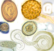 36 Best Paraziti images   Microbiology, Medical laboratory, Medical laboratory science