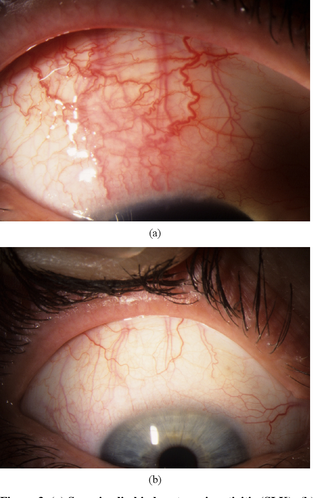 conjunctival papilloma cryotherapy)