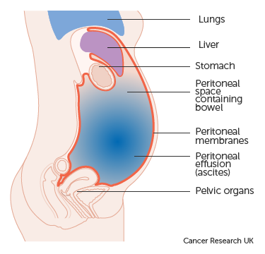 cancer of abdominal
